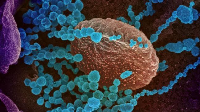 Anticuerpo que bloquea la infección descubierta