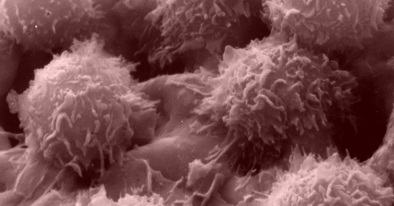 El coronavirus está empujando al Reino Unido hacia una crisis de cáncer